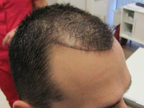 Przeszczepy włosów Warszawa przed zabiegiem