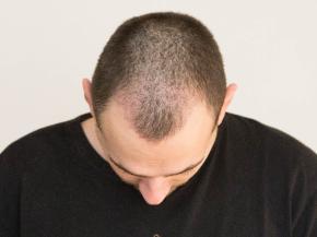 Przeszczepy włosów Warszawa po zabiegu transplantacji włosów