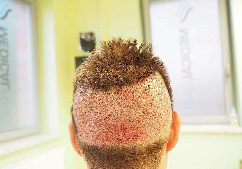Głowa w trakcie przeszczepu włosów z wykorzystaniem metody FUE