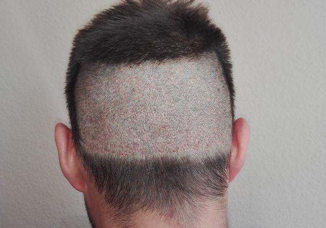 Głowa przed przeszczepem włosów typu FUE