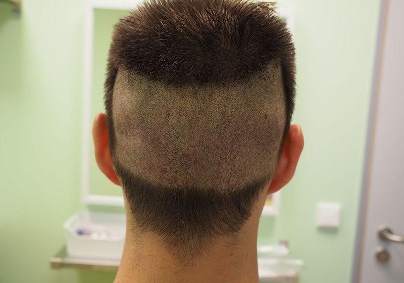 Głowa 7 dni po przeszczepie FUE