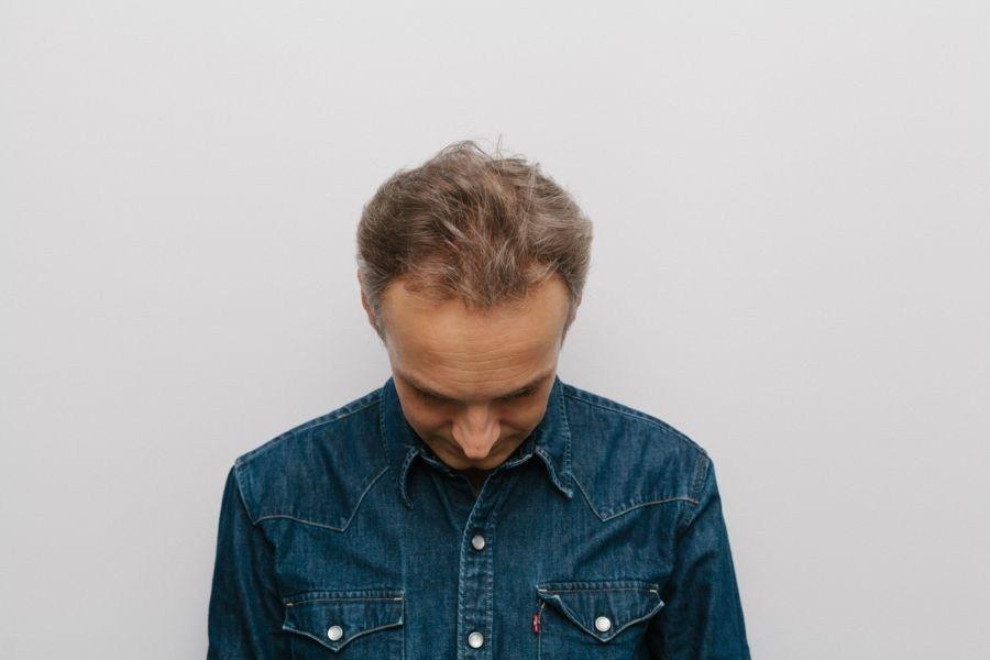 Przeszczep włosów Artura Chamskiego - przed przeszczepem