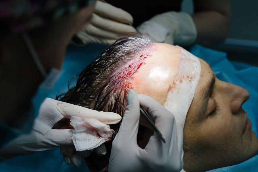 Przeszczep włosów Artura Chamskiego
