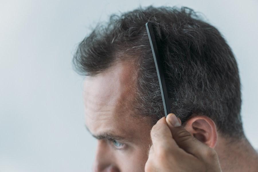 Co warto wiedzieć o przeszczepie włosów