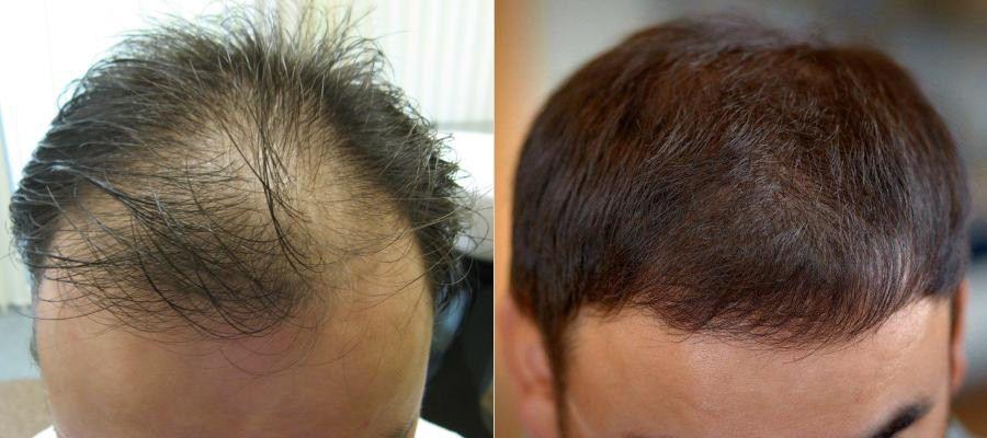 3200 grafts (x 1-3 włosy)