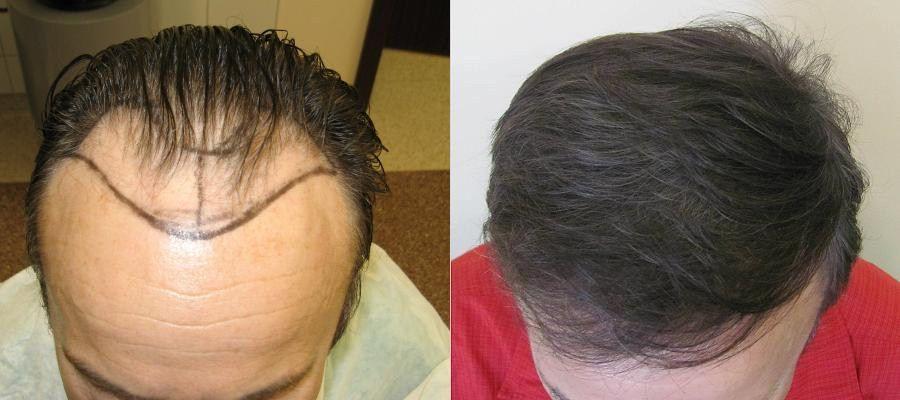 2800 grafts ( x 1-3 włosy)