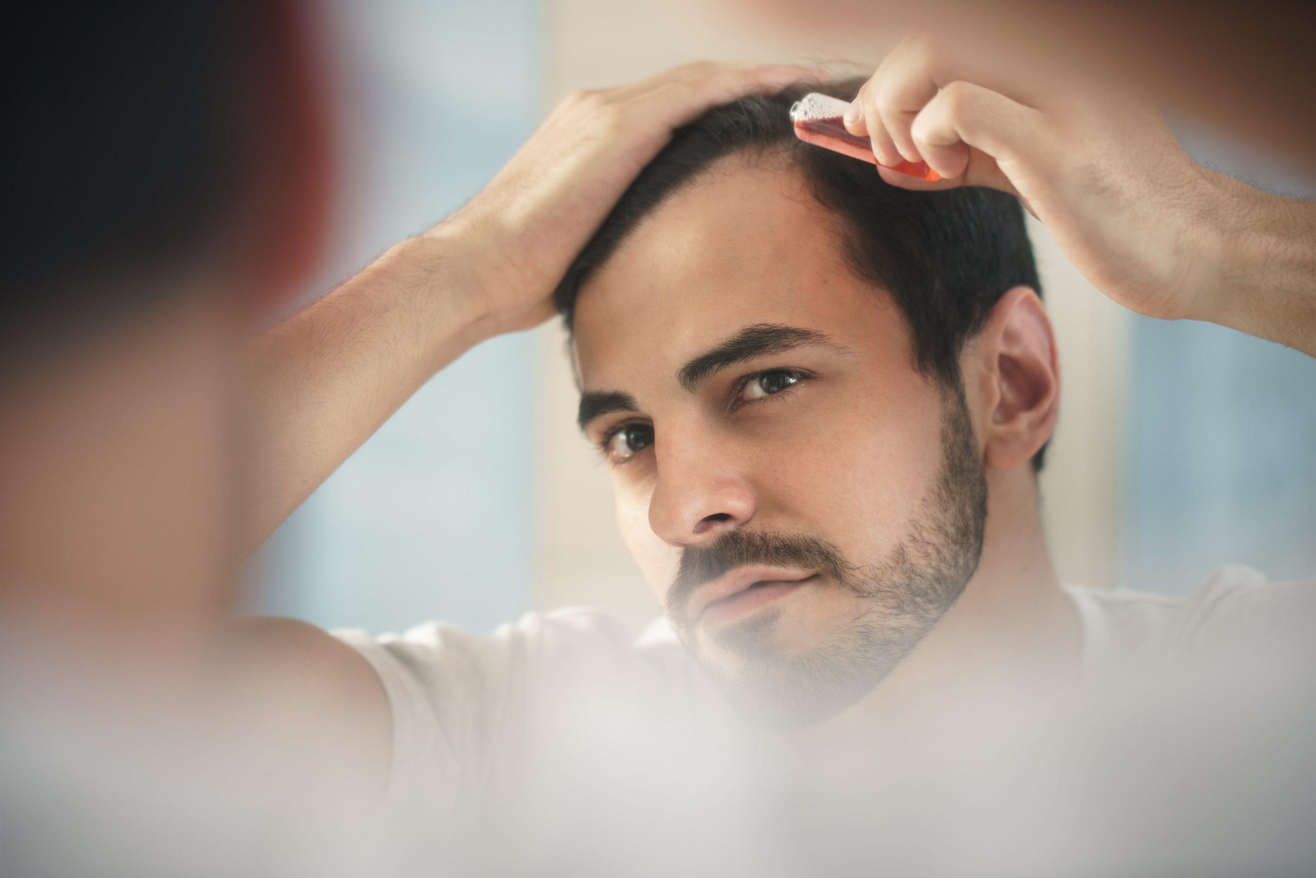 Transplantacja włosów - fanaberia czy ratunek