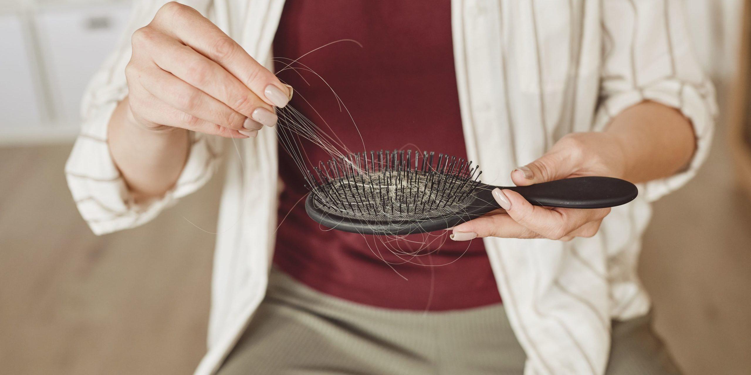 Przeszczep włosów - kiedy jest wskazany
