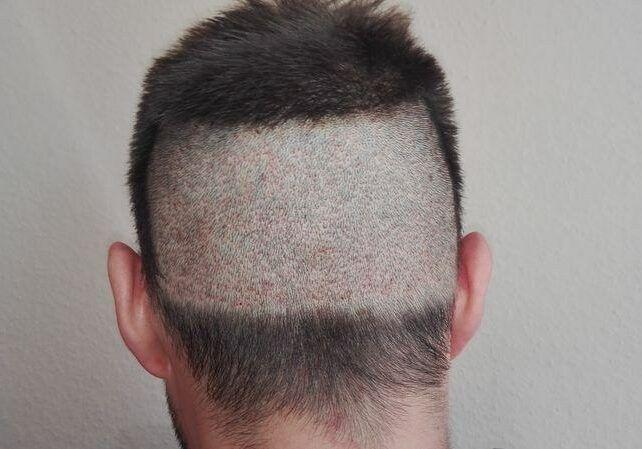 Przeszczep włosów metodą FUE po 10 dniach w Medical Hair