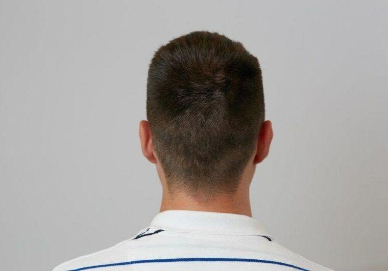 Przeszczep włosów metodą FUE po odrośnięciu włosów w Medical Hair