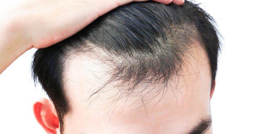 Przeszczep włosów robotem